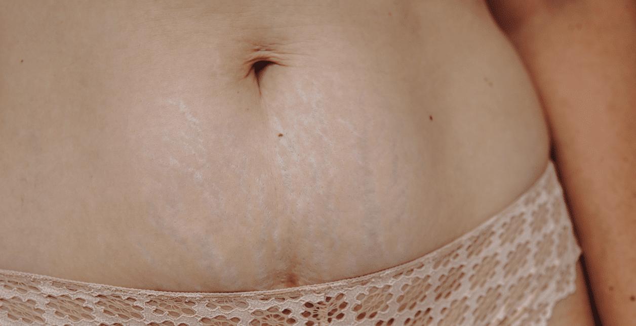 Postpartum lichaam na de bevalling (How About Mom)