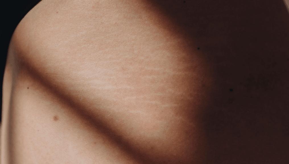 Striae Huid selflove